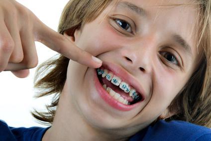 un enfant montre son appreil dentaire