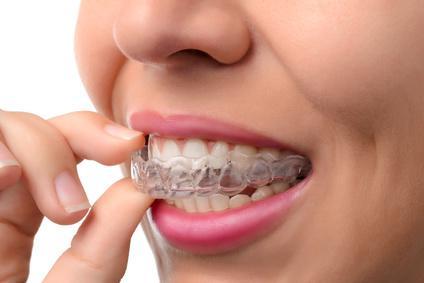 une femme porte un appareil dentaire