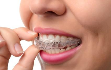 Enfants, adolescents, adultes : l'orthodontie est-elle remboursée ?