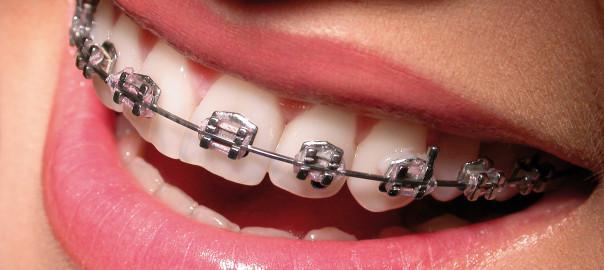 Appareil dentaire : pensez à vos remboursements