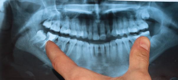 Bénéficiez de soins dentaires complets avec Alptis